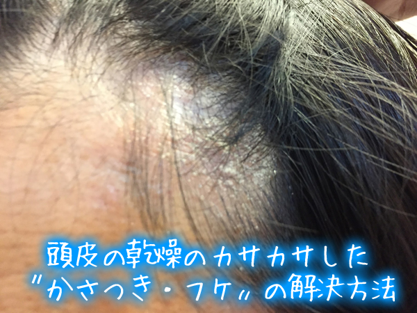 頭皮の乾燥のカサカサした〝かさつき・フケ〟の解決方法.jpg
