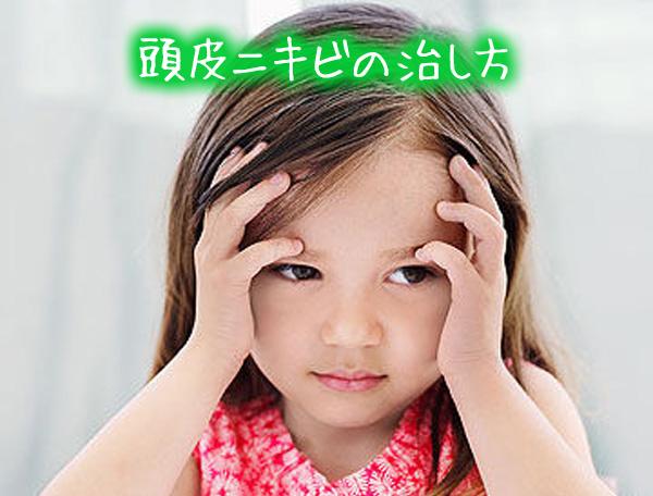 頭皮ニキビの治し方.jpg