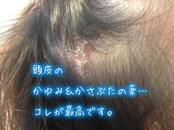 頭皮の〝かゆみ&かさぶた〟の薬…コレが最高です。.jpg