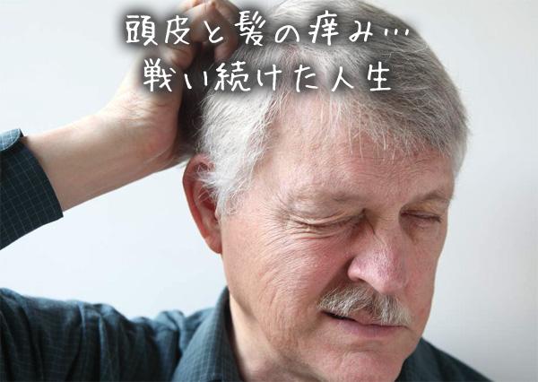 頭皮と髪の痒み…戦い続けた人生.jpg