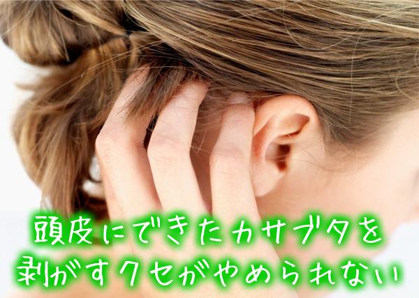 頭皮にできたカサブタを剥がすクセがやめられない.jpg