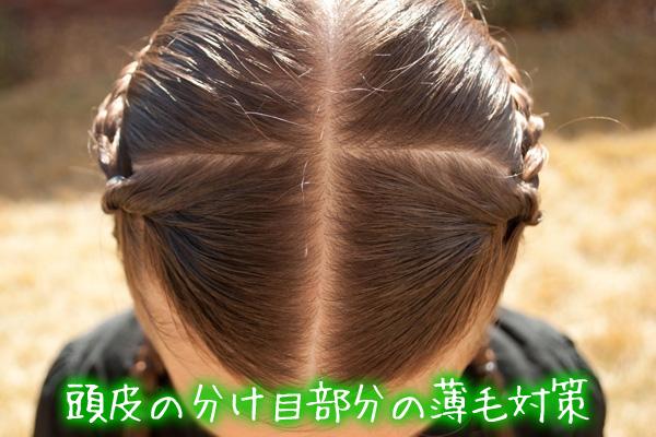 頭皮の分け目部分の薄毛対策.jpg