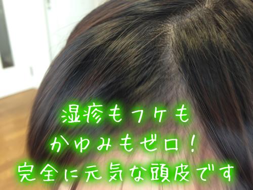 頭皮の湿疹・フケ・かゆみ、ゼロ完全に治った.jpg