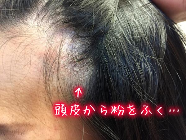 頭皮湿疹で頭皮から粉をふく.jpg