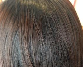 きれいな頭皮.jpg