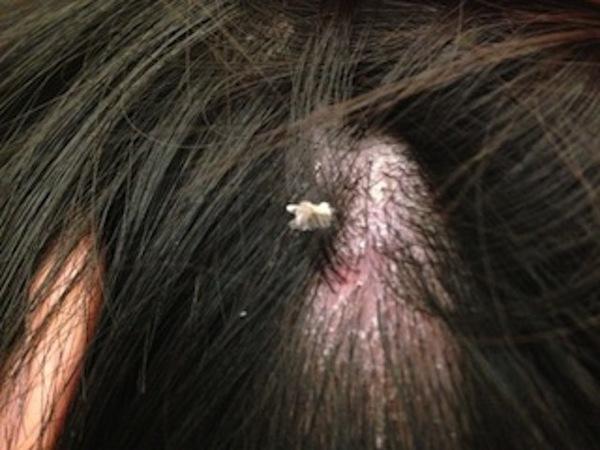 頭皮湿疹.jpg