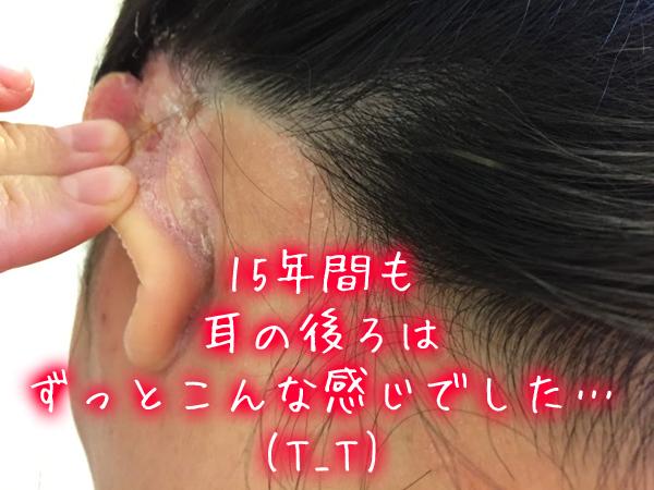 頭皮湿疹で耳の裏の炎症.jpg